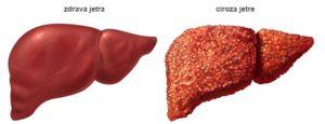 slika zdrave i cirotične jetre -chirosis hepatis
