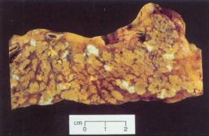 Acute Pankreatitis